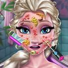 Elsa Skin Doctor Game